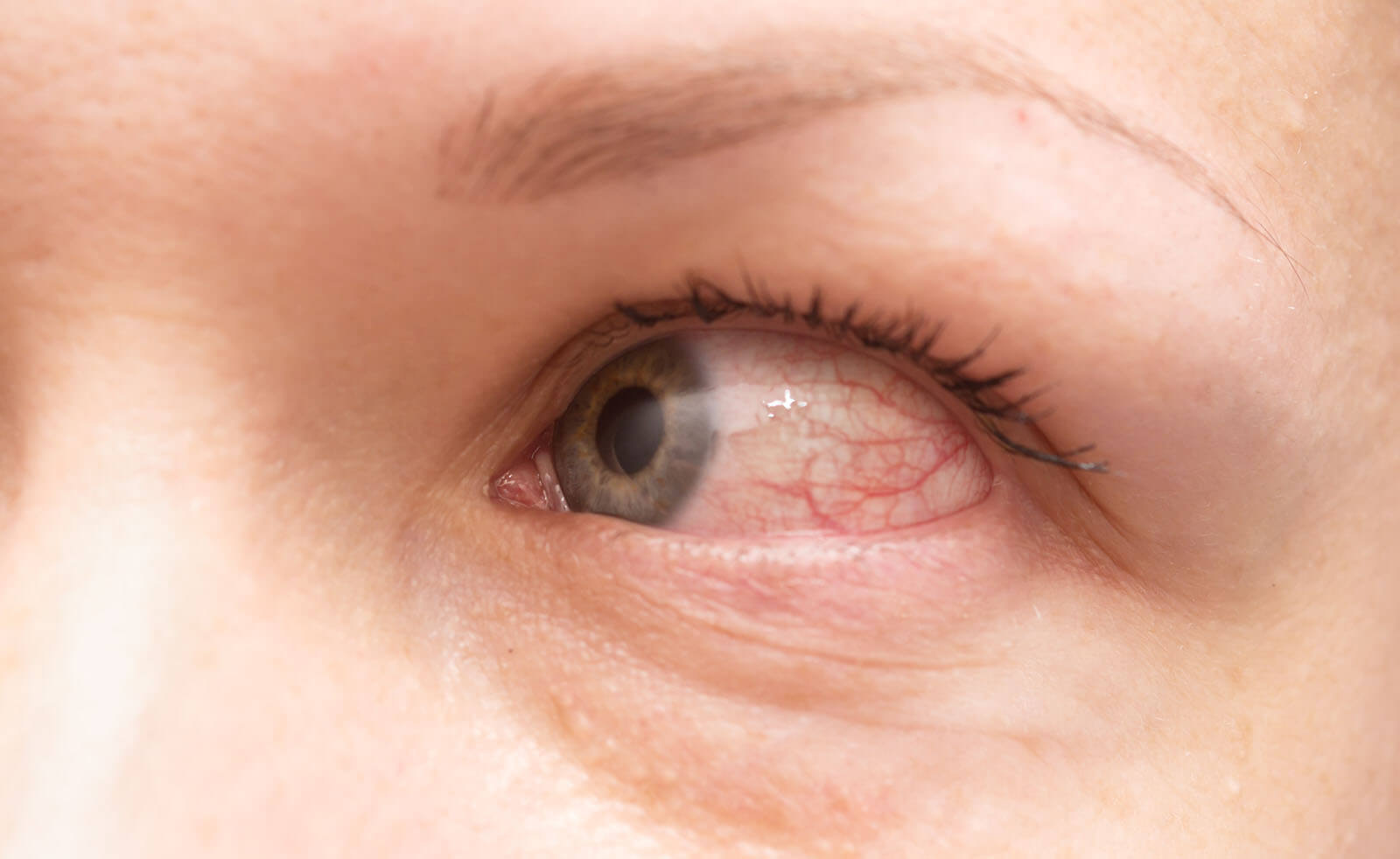 Itchy red eye, symptomatic of an eye allergy.